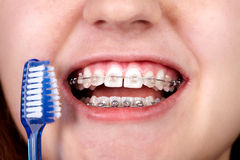 Teeth with orthodontic brackets. Stock Photography
