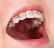 Teeth with orthodontic brackets. Royalty Free Stock Image
