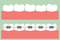 Teeth orthodontics Royalty Free Stock Photography