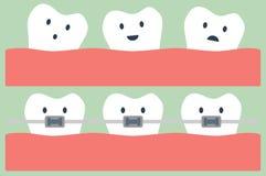 Teeth orthodontics Stock Photos