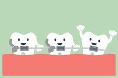 Teeth orthodontics Royalty Free Stock Photos