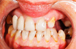 Teeth. Picture of human teeth during dental treatment Stock Photos