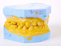 Teeth plaster cast Royalty Free Stock Image