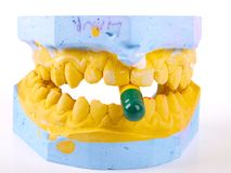 Teeth plaster cast Royalty Free Stock Images