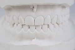 Teeth plaster cast. In the front in white stock photography