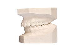 Teeth plaster casting isolating on white. Background stock photo