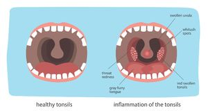 Teeth. Poster Infographics illustration of a healthy throat difference from tonsillitis Stock Image