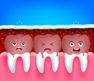 Teeth problem of aerated soft drink. Royalty Free Stock Image