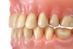 Teeth prosthesis background Stock Image