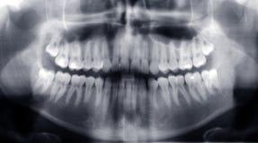 Teeth x-ray. X-ray image of human teeth stock photo