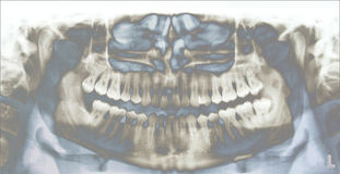 Teeth X-ray. Full mouth panoramic dental X-ray of a 29 year old male. Wisdom teeth are visible, one is missing Stock Photos