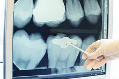 Teeth x-ray stock photos