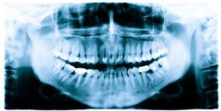 Teeth x-ray image. Teeth and jaw  dental  x-ray image Stock Image