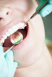Teeth reflection on dentist mirror Stock Image