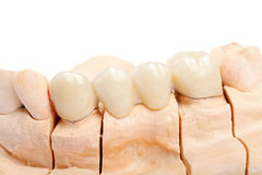 Teeth rehabilitation Stock Photo