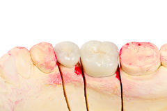 Teeth rehabilitation Stock Photography