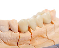 Teeth rehabilitation Royalty Free Stock Image