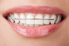 Teeth with retainer. White healthy teeth with retainer stock photography