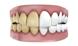 Teeth Set Isolated Royalty Free Stock Image