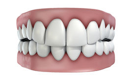 Teeth Set Isolated Stock Photo