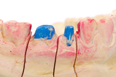 Teeth stump. Teeth polished with shoulder on the gypsum model Royalty Free Stock Photography