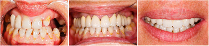 Teeth before and after treatment. Picture of human teeth before and after dental treatment - beforeafter series Stock Photo