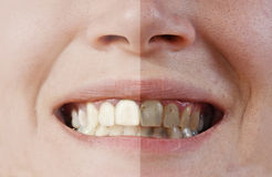 Teeth before and after Royalty Free Stock Photos