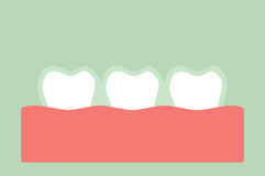 Teeth wear silicone trainer or invisible braces Royalty Free Stock Image