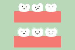 Before and after teeth wear silicone trainer or invisible braces Royalty Free Stock Image