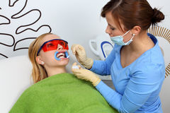 Teeth whitening Stock Image