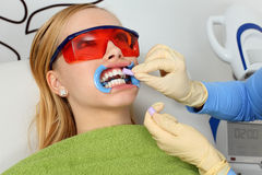 Teeth whitening Royalty Free Stock Image