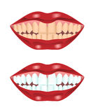 Teeth before and after whitening Royalty Free Stock Images