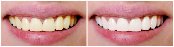 Teeth before and after whitening Stock Image