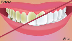 Teeth whitening. Color medical illustration Royalty Free Stock Photo