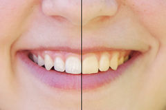 Teeth whitening before and after. Concept. comparision between yellow and white teeth side by side Royalty Free Stock Photos