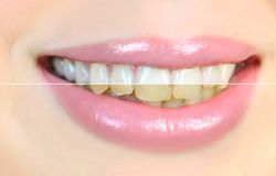 Teeth whitening effect, before and after. royalty free stock photos