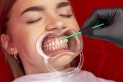 Teeth whitening girl on the procedure of teeth whitening in the dental office royalty free stock image