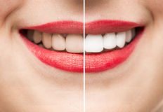 Teeth After and Before Whitening Stock Photography