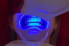 Teeth whitening procedure ultraviolet lamp whiten teeth girl royalty free stock photography