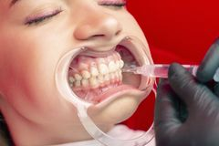 Teeth whitening procedure young girl dentist put bleach on teeth. Dilator in mouth stock image