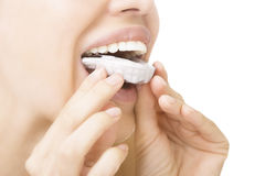 Teeth Whitening - smiling girl with tooth tray Royalty Free Stock Images