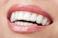 Teeth with whitening tray Royalty Free Stock Images