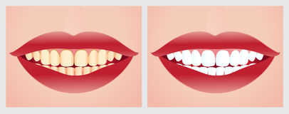 Teeth whitening. Vector illustration of teeth whitening before and after the treatment Royalty Free Stock Photo