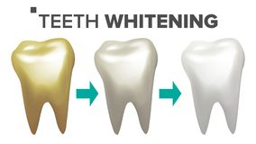 Teeth Whitening Vector. Teeth And Tooth Dental Concept. Healthcare. Realistic Isolated Illustration. Teeth Whitening Vector. Before And After View Of Teeth Stock Image
