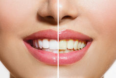 Teeth Before and After Whitening. Woman Teeth Before and After Whitening. Oral Care Stock Photos