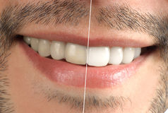 Teeth. Wide sincere smile. Teeth. Dental. Wide sincere smile Royalty Free Stock Photos