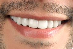 Teeth. Wide sincere smile Stock Photo