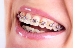 Free Teeth With Braces Royalty Free Stock Images - 22427479