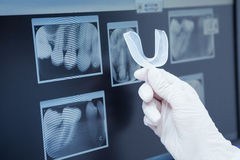 Teeth x-ray Stock Images