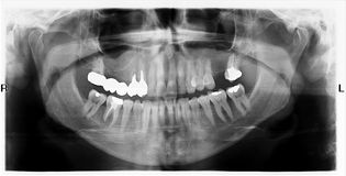 Teeth on X-Ray Image Stock Photography